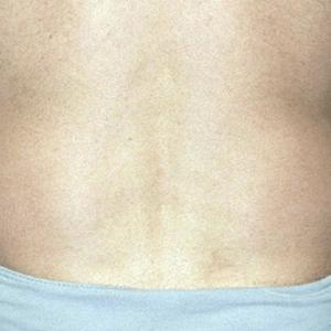 liposukcja-vaser-lipo-7