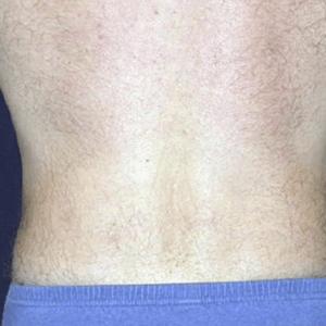 liposukcja-vaser-lipo-8