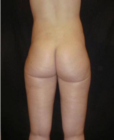liposukcja-boczki-1