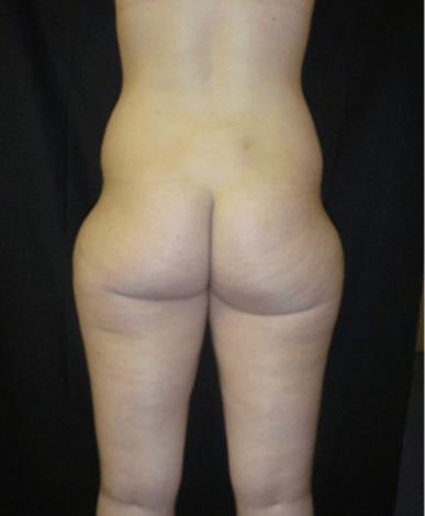 liposukcja-boczki