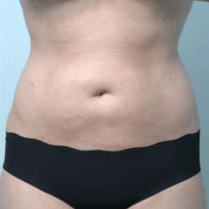 liposukcja-brzuch-kobieta-1