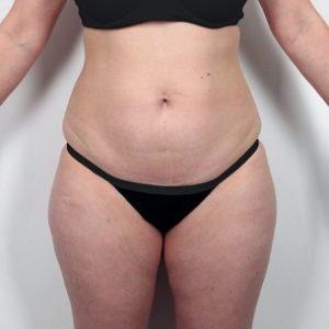 liposukcja-brzucha-3