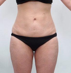 liposukcja-brzucha-4