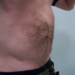 liposukcja-brzucha-po