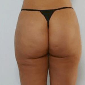 liposukcja-posladkow-1