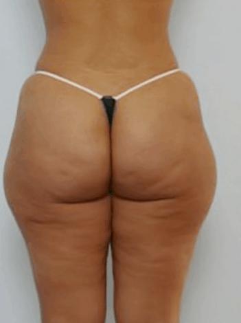 liposukcja-posladkow