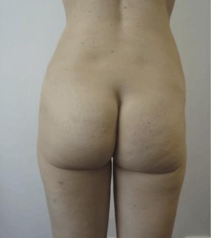 liposukcja-pupy-1