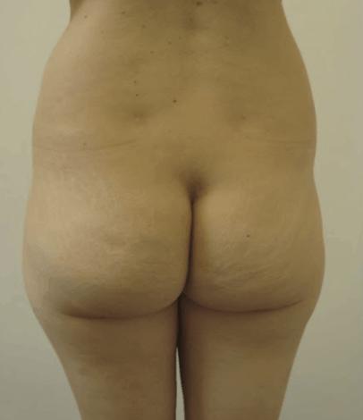 liposukcja-pupy
