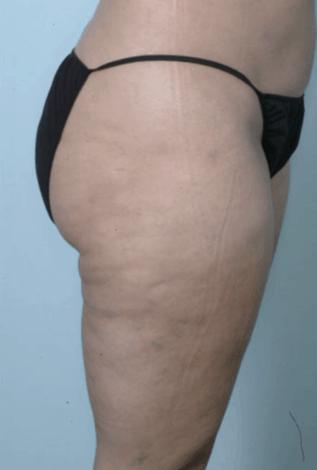 liposukcja-ud-1