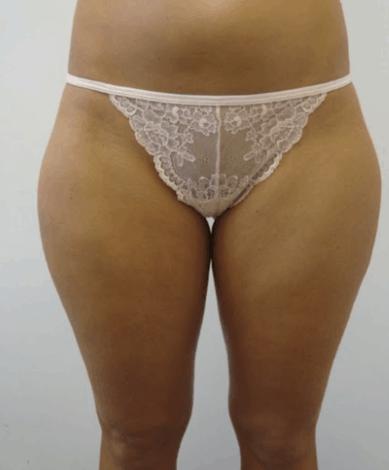 liposukcja-ud-3