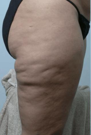 liposukcja-ud