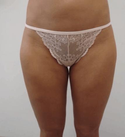 liposukcja-ud-4