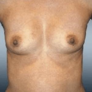 powie%cc%a8kszanie-piersi-1