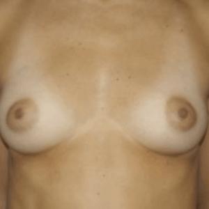 powie%cc%a8kszanie-piersi-tluszczem-1