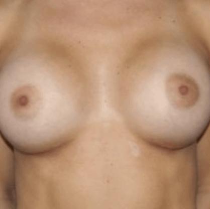 powie%cc%a8kszanie-piersi-tluszczem-2