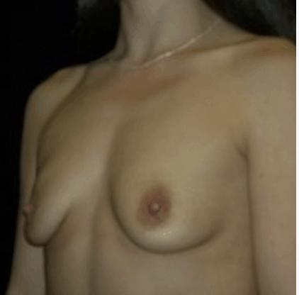 powie%cc%a8kszanie-piersi-tluszczem-3