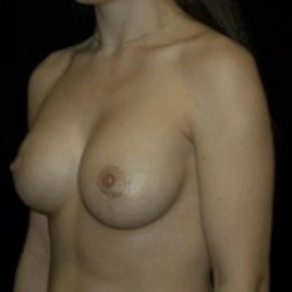 powie%cc%a8kszanie-piersi-tluszczem-4