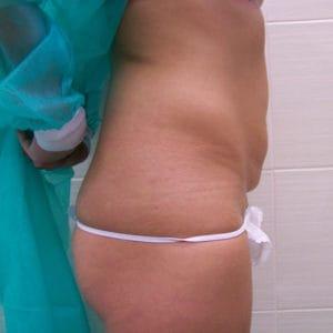 przed-zabiegiem-liposukcji