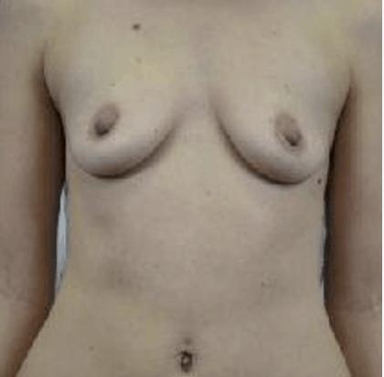 przeszczep-tluszczu-do-piersi-1