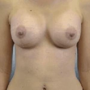 przeszczep-tluszczu-do-piersi-2