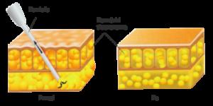tkanka-tluszczowa