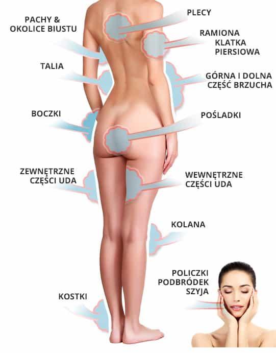 liposukcja-kobieta