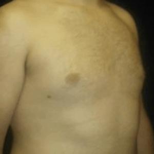 ginekomastia-piersi-1
