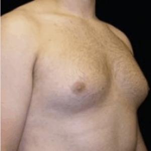 ginekomastia-piersi