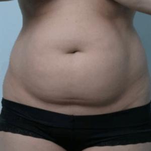 liposukcja-brzuch-kobieta