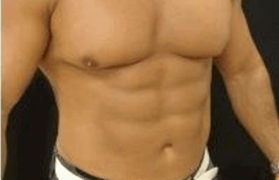 liposukcja-brzucha-warszawa-1