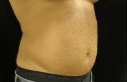 liposukcja-brzucha-warszawa