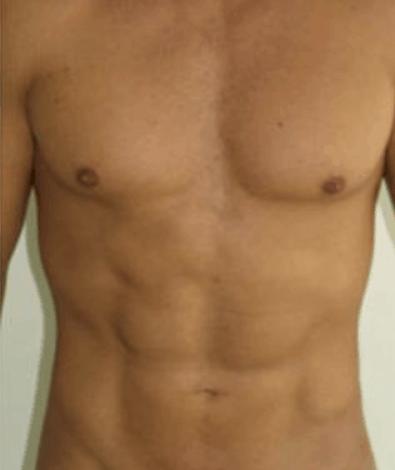 liposukcja-kaloryfer-1