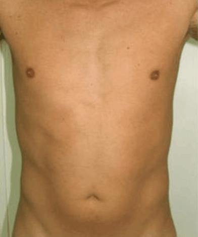 liposukcja-kaloryfer