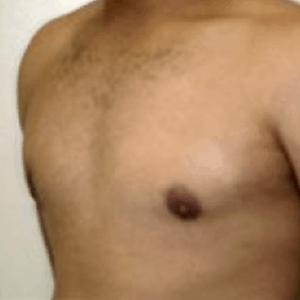 liposukcja-klatki-piersiowej-1