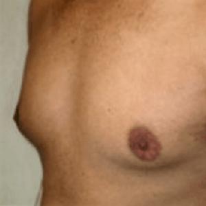 me%cc%a8skie-piersi