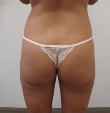 uda-liposukcja-1