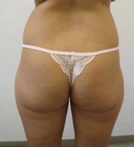 uda-liposukcja