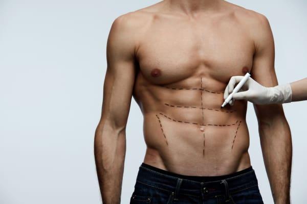 liposukcja brzucha VaserLipo