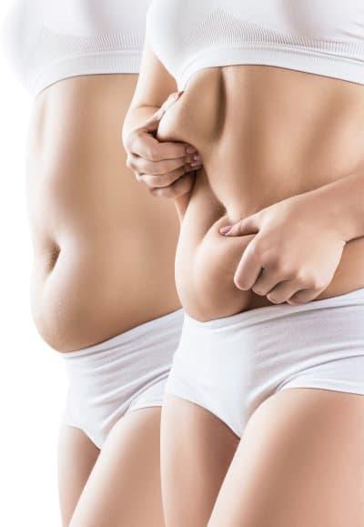 odsysanie-tluszczu-brzuch