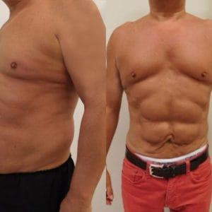 liposukcja vaserlipo przed po