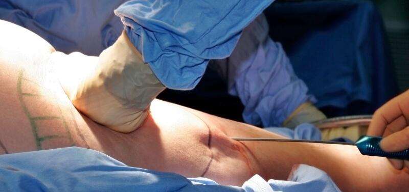 zabieg-liposukcji-hd